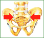 Болезнь Бехтерева - тазобедренный сустав